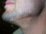 pelade-barbe.jpg