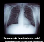 visuel-radiographie-normale-des-poumons-de-face-a20.jpg