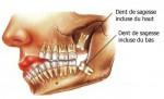 wisdom_teeth_01_fr.jpg