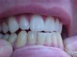 dents1.jpg
